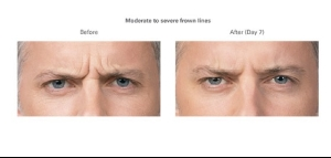 Botox Before and After 4 | Botox Injections in Burbank